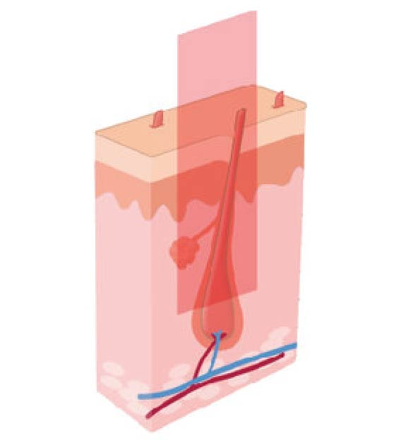 How Laser Hair Removal works step 2